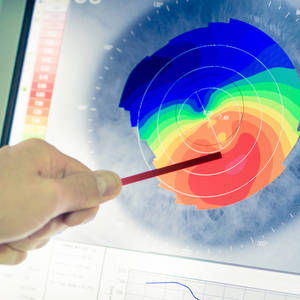 Main topografia corneale